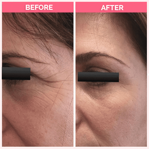 """50 units Dysport for the """"crow's feet"""" wrinkles of the eyes."""