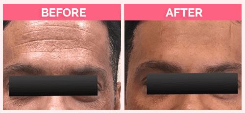 Dysport for men ( Treated forehead and eye wrinkles )
