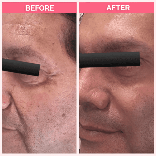 Dysport for wrinkles of the forehead between the eyes and the eye corners. Restylane for cheek, nasolabial folds and Marionette likes.