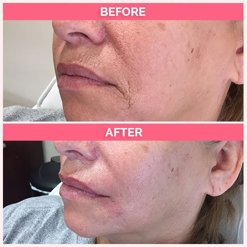 Restylane for nasolabial folds (parentheses), Marionette lines, depression of the lip corner and upper lip vertical lines. Immediately after the procedure.