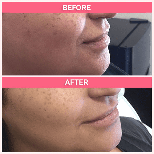 Restylane for the nasolabial folds (parentheses)