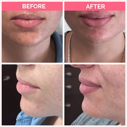 Restylane for upper lip augmentation.